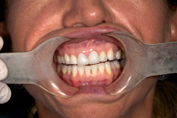 Dentistofbellflower.com before picture Dr. H Hakimi
